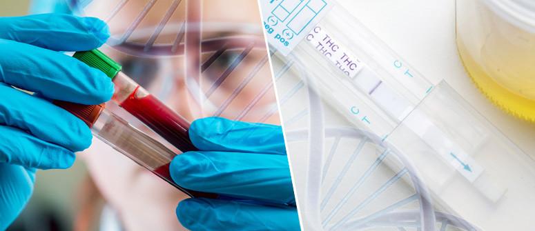 Drogentest: Wie lange bleibt THC nachweisbar